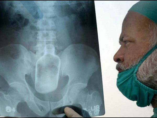 worst x rays in the world
